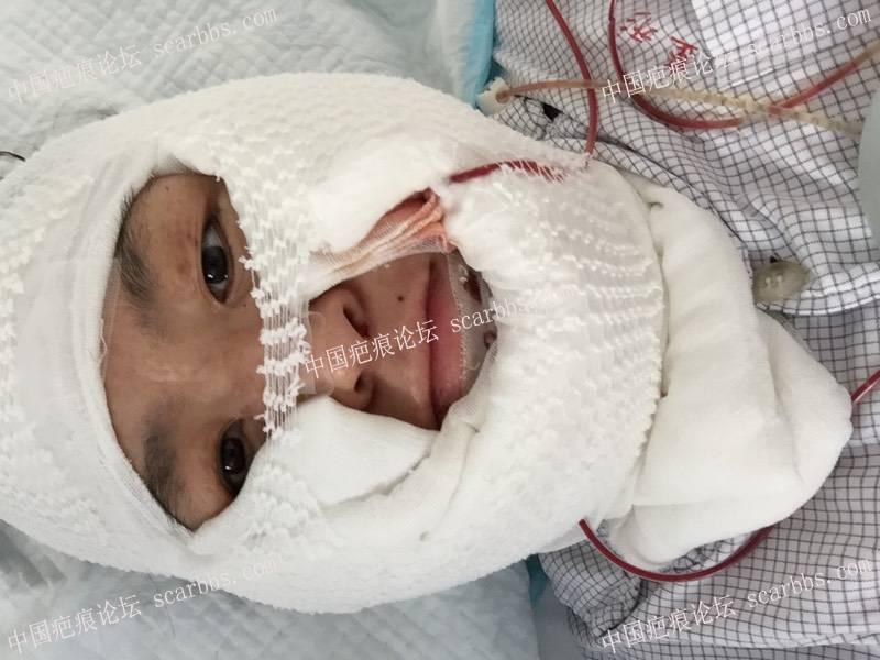 面部烧烫伤疤痕扩张器治疗77-疤痕体质图片_疤痕疙瘩图片-中国疤痕论坛