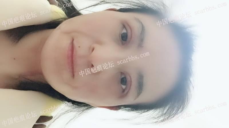 面部烧烫伤疤痕扩张器治疗59-疤痕体质图片_疤痕疙瘩图片-中国疤痕论坛