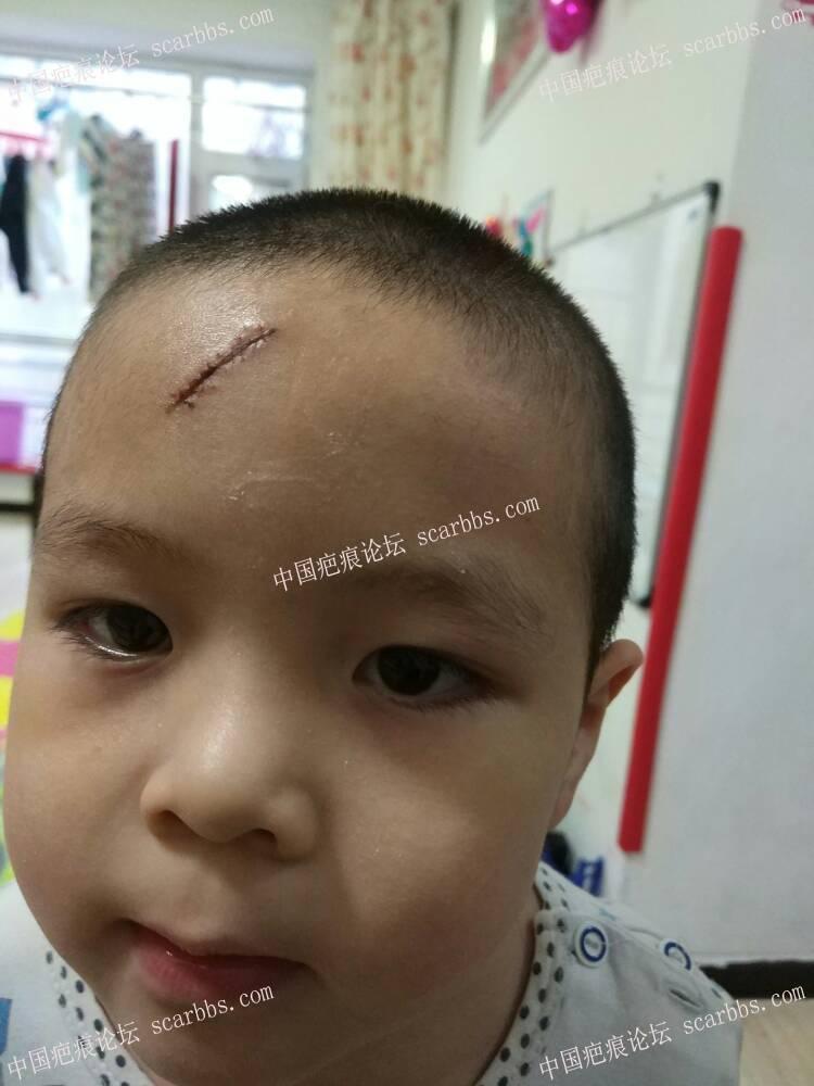 孩子额头磕伤大家帮忙看看15-疤痕体质图片_疤痕疙瘩图片-中国疤痕论坛
