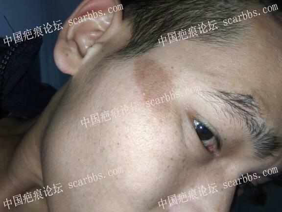 脸上色素疤痕4个月了1-疤痕体质图片_疤痕疙瘩图片-中国疤痕论坛