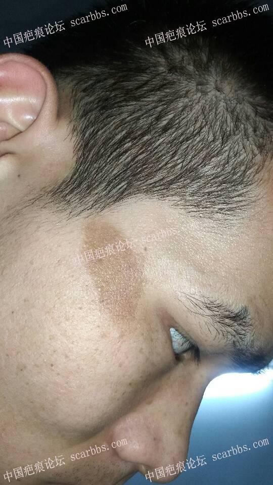 脸上色素疤痕4个月了47-疤痕体质图片_疤痕疙瘩图片-中国疤痕论坛