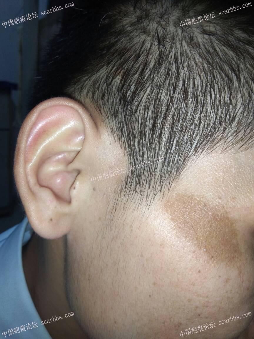 脸上色素疤痕4个月了36-疤痕体质图片_疤痕疙瘩图片-中国疤痕论坛