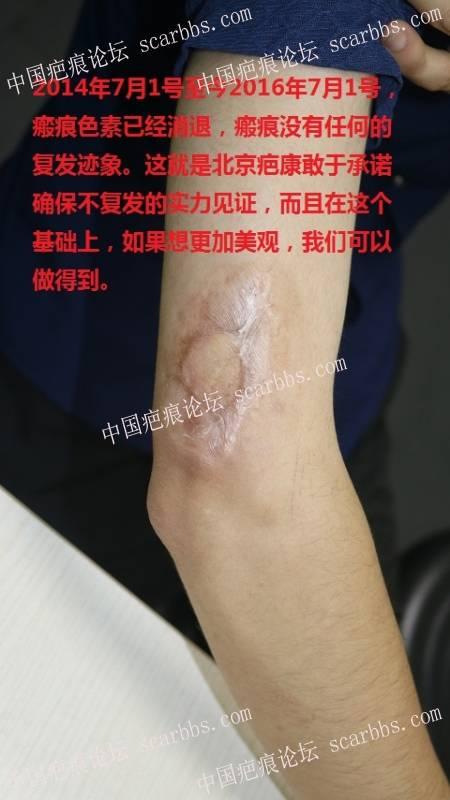 背部疤痕疙瘩十年了,有机会去掉吗?25-疤痕体质图片_疤痕疙瘩图片-中国疤痕论坛