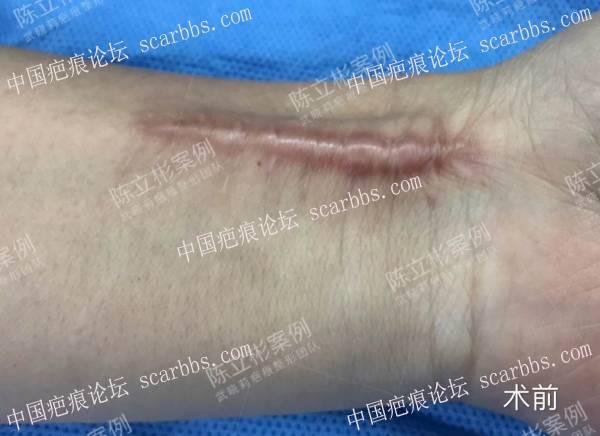 #增生性疤痕# #前臂疤痕# #上肢疤痕# 术后4个月复诊