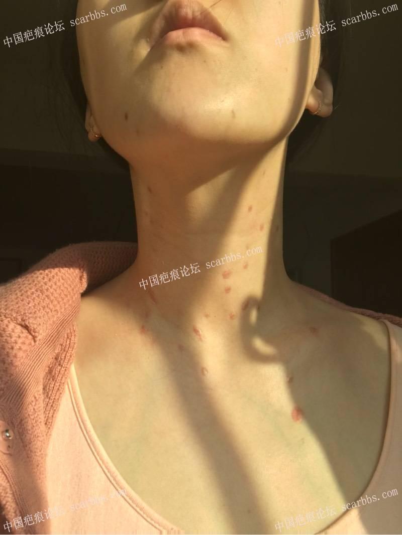 药水点丝状疣 疤痕增生27-疤痕体质图片_疤痕疙瘩图片-中国疤痕论坛