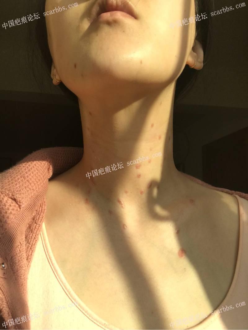 药水点丝状疣 疤痕增生68-疤痕体质图片_疤痕疙瘩图片-中国疤痕论坛