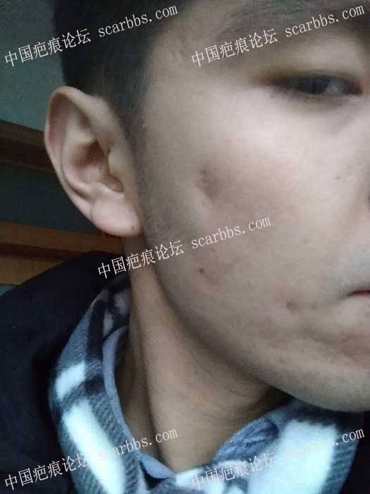 高中时候一个比较大的囊肿性痤疮 没有管,后来溃烂留疤32-疤痕体质图片_疤痕疙瘩图片-中国疤痕论坛