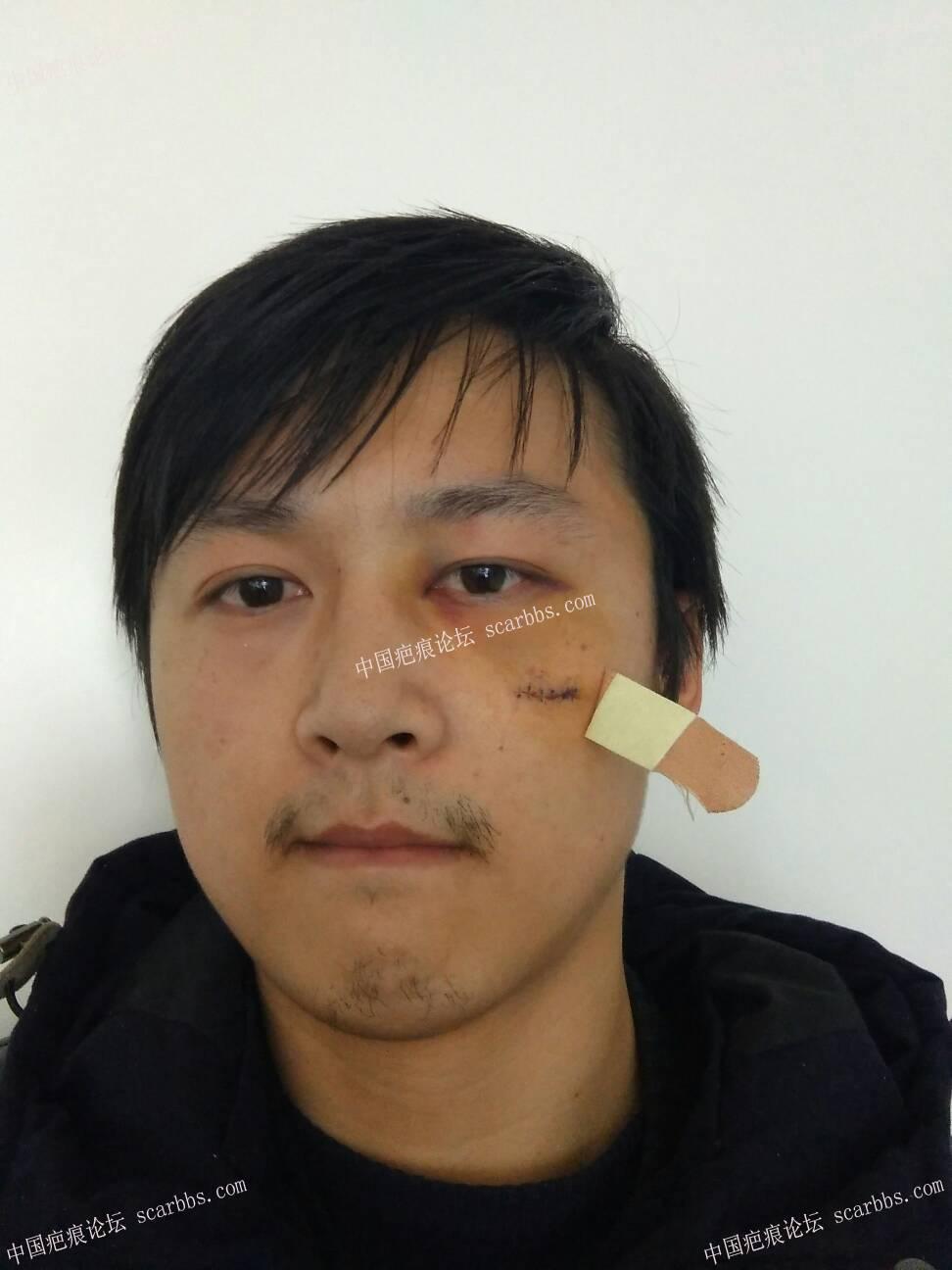 打篮球被肘子打破脸,颧部2cm伤口