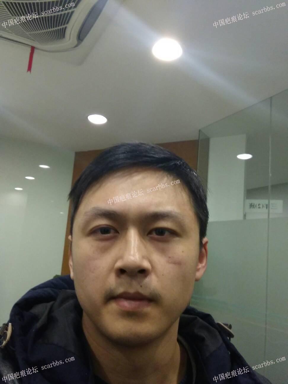打篮球被肘子打破脸,颧部2cm伤口24-疤痕体质图片_疤痕疙瘩图片-中国疤痕论坛