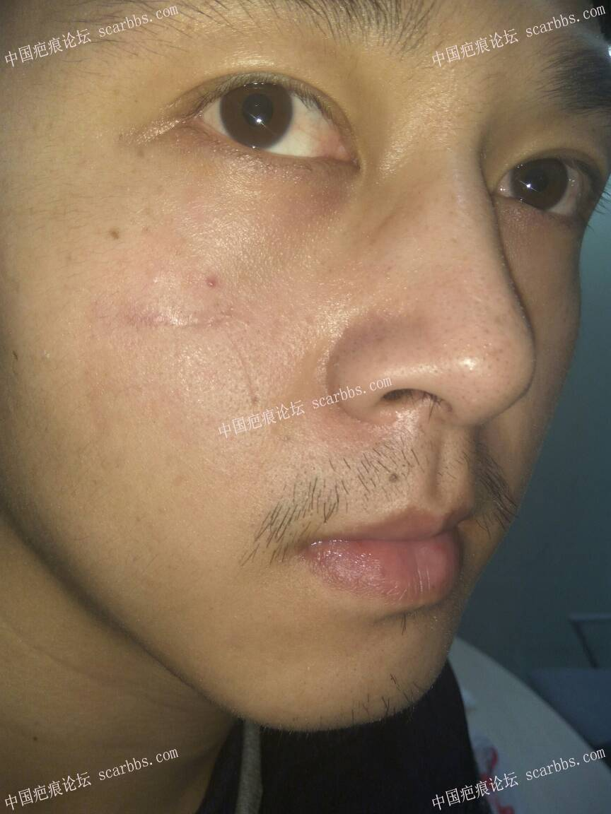 打篮球被肘子打破脸,颧部2cm伤口0-疤痕体质图片_疤痕疙瘩图片-中国疤痕论坛