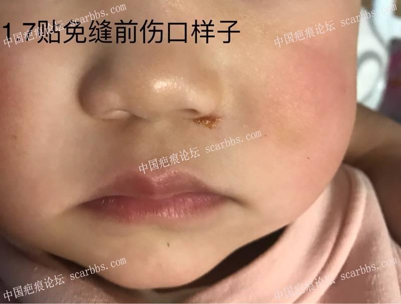请问这个地方磕伤如何减张控宽。49-疤痕体质图片_疤痕疙瘩图片-中国疤痕论坛