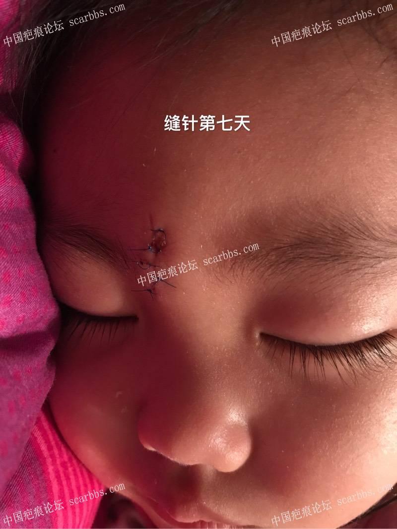 孩子脚滑磕伤额头里面四针外面五针、记录!78-疤痕体质图片_疤痕疙瘩图片-中国疤痕论坛