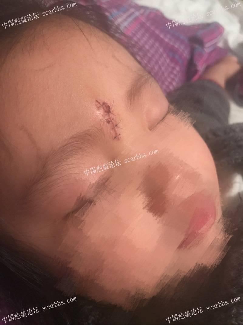 孩子脚滑磕伤额头里面四针外面五针、记录!1-疤痕体质图片_疤痕疙瘩图片-中国疤痕论坛