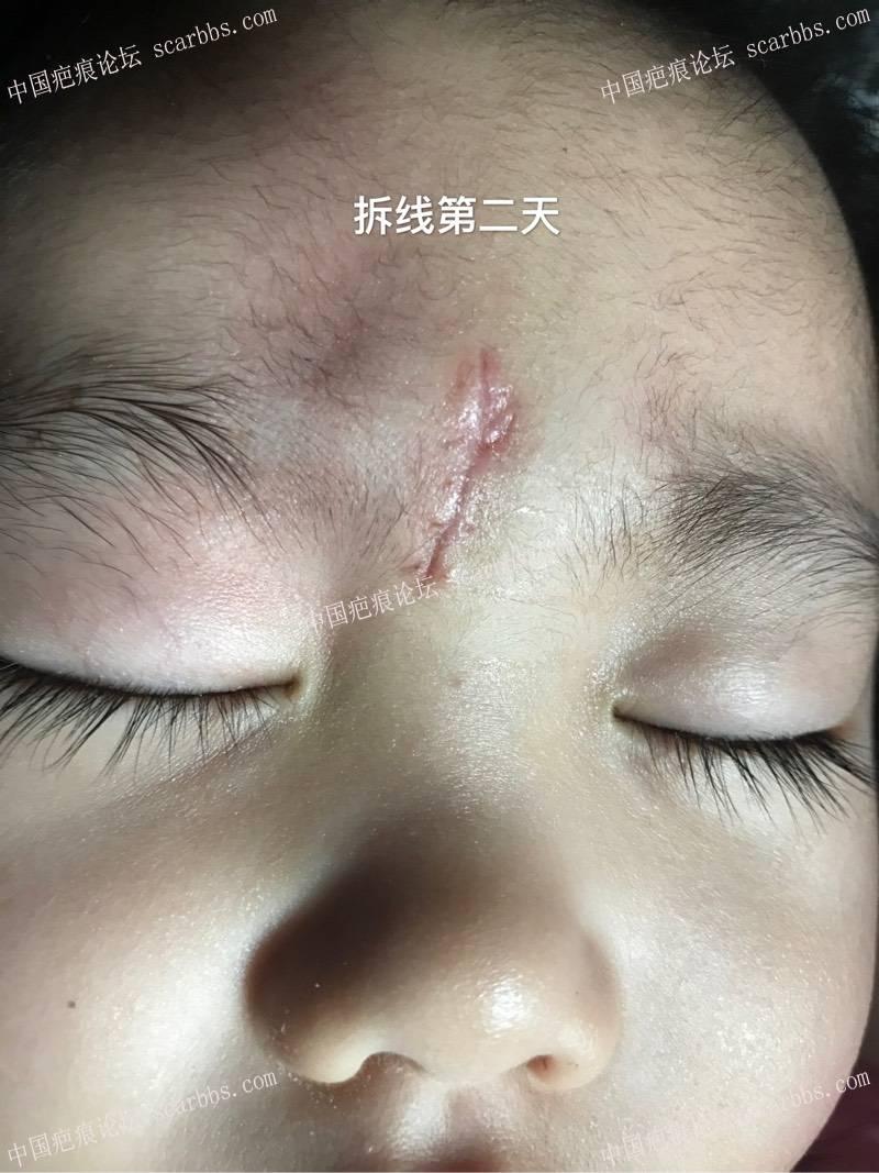 孩子脚滑磕伤额头里面四针外面五针、记录!97-疤痕体质图片_疤痕疙瘩图片-中国疤痕论坛