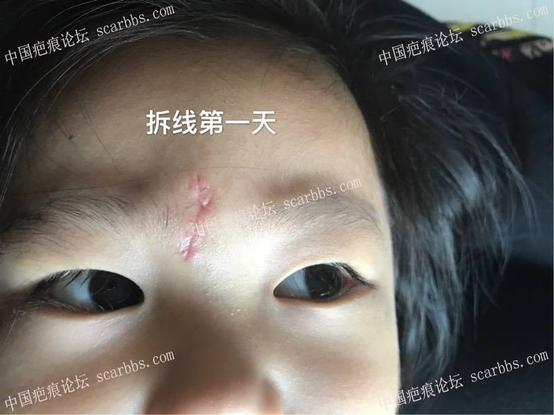 孩子脚滑磕伤额头里面四针外面五针、记录!84-疤痕体质图片_疤痕疙瘩图片-中国疤痕论坛
