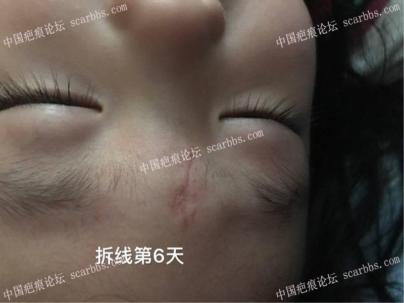 孩子脚滑磕伤额头里面四针外面五针、记录!59-疤痕体质图片_疤痕疙瘩图片-中国疤痕论坛