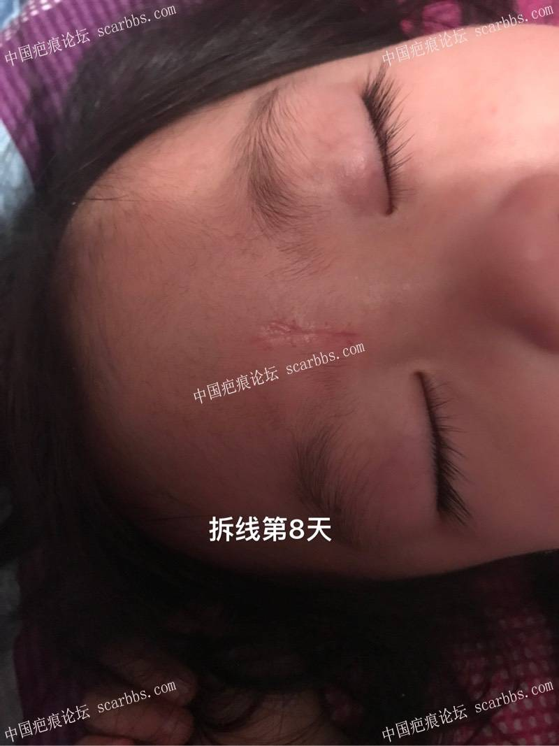 孩子脚滑磕伤额头里面四针外面五针、记录!23-疤痕体质图片_疤痕疙瘩图片-中国疤痕论坛