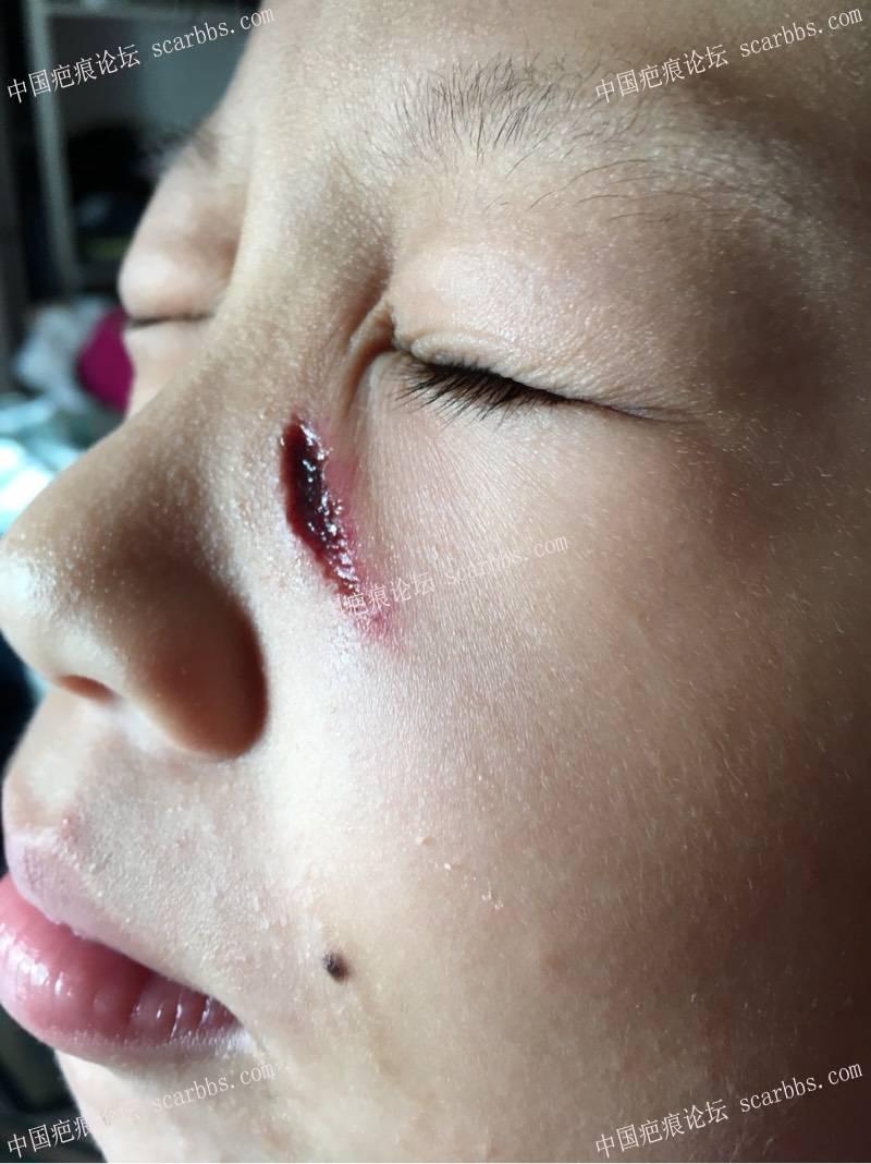 孩子面部伤后两个月,40-疤痕体质图片_疤痕疙瘩图片-中国疤痕论坛