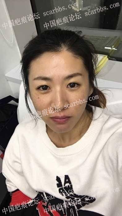 30了还一直出痘痘,谁来帮我治治脸17-疤痕体质图片_疤痕疙瘩图片-中国疤痕论坛
