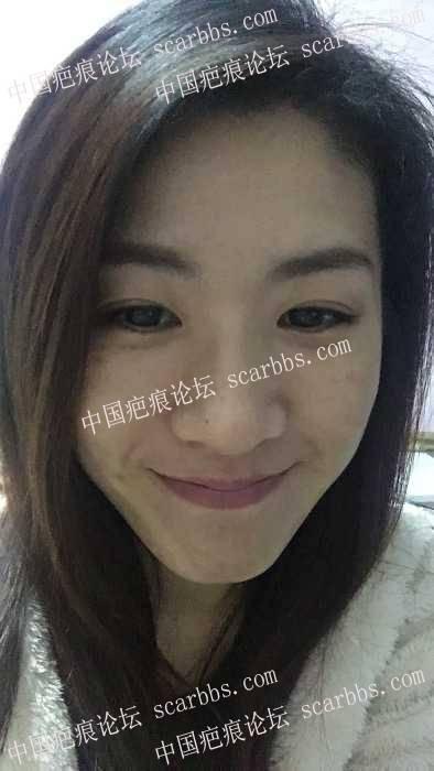 30了还一直出痘痘,谁来帮我治治脸68-疤痕体质图片_疤痕疙瘩图片-中国疤痕论坛