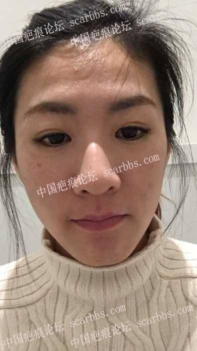 30了还一直出痘痘,谁来帮我治治脸55-疤痕体质图片_疤痕疙瘩图片-中国疤痕论坛