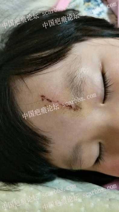 女儿头部磕伤拆线第16天,求大神支招疤痕如何护理才不会在她美丽的额头上留下遗憾?62-疤痕体质图片_疤痕疙瘩图片-中国疤痕论坛