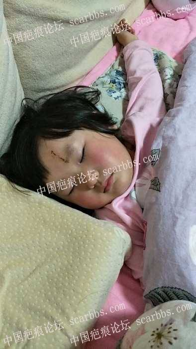 女儿头部磕伤拆线第16天,求大神支招疤痕如何护理才不会在她美丽的额头上留下遗憾?52-疤痕体质图片_疤痕疙瘩图片-中国疤痕论坛