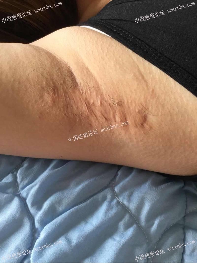 开帖记录治疗腋下疤痕