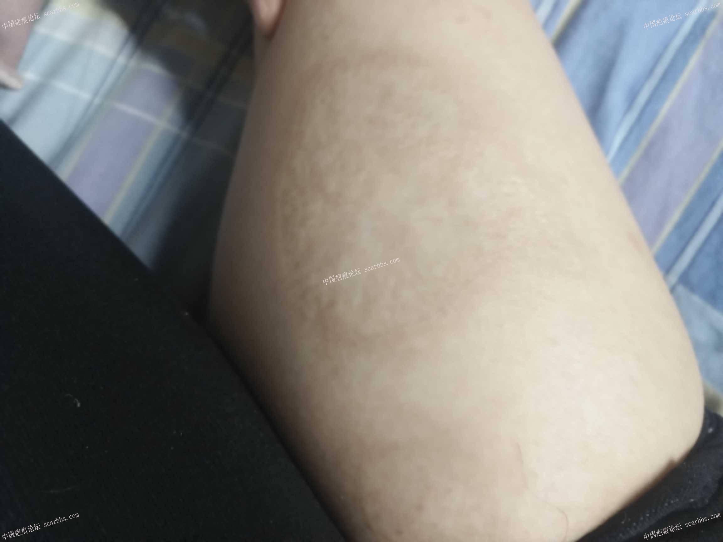 小时候烧伤后形成的色素疤痕,请问怎样可以去除27-疤痕体质图片_疤痕疙瘩图片-中国疤痕论坛