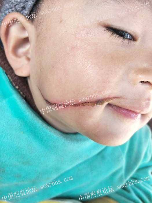 宝宝面部被火炉锅边烫伤,恢复的怎么样了?0-疤痕体质图片_疤痕疙瘩图片-中国疤痕论坛