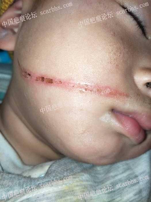 宝宝面部被火炉锅边烫伤,恢复的怎么样了?21-疤痕体质图片_疤痕疙瘩图片-中国疤痕论坛