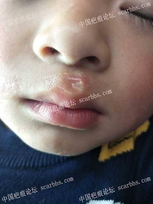 宝宝面部被火炉锅边烫伤,恢复的怎么样了?91-疤痕体质图片_疤痕疙瘩图片-中国疤痕论坛