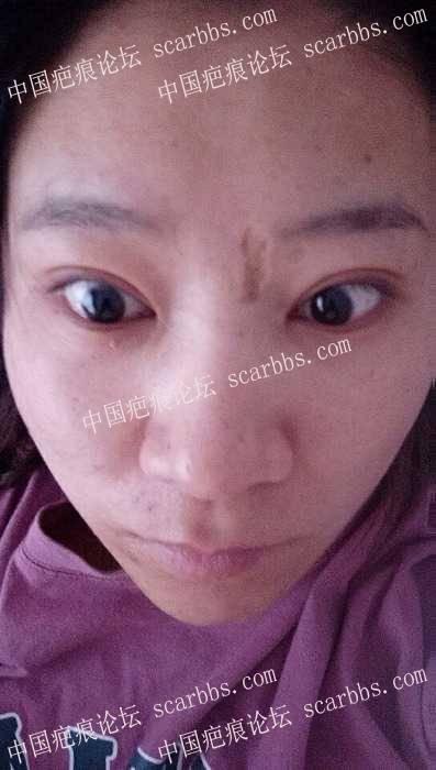 我要治疗  可是找不到靠谱的医院93-疤痕体质图片_疤痕疙瘩图片-中国疤痕论坛