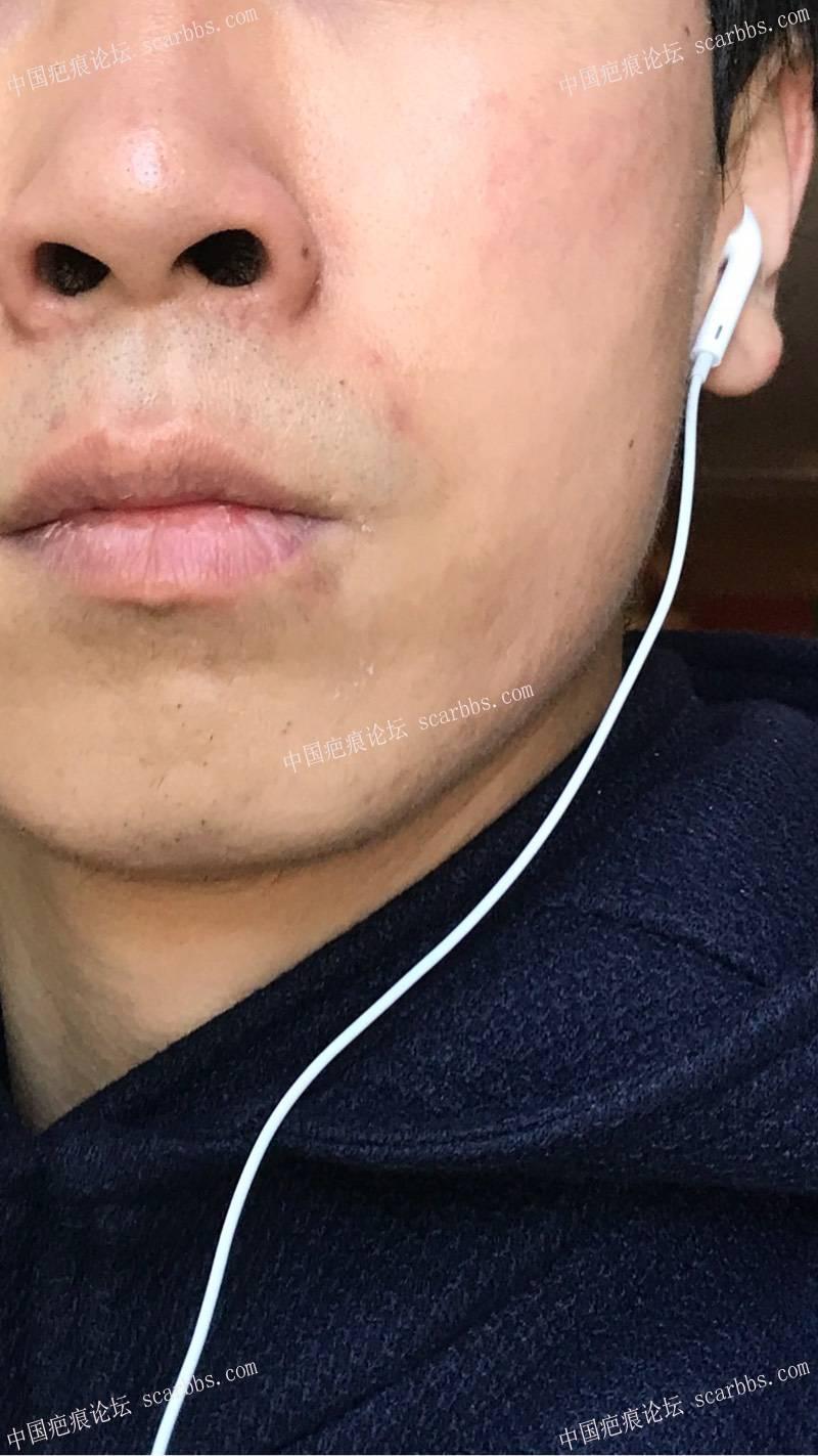 嘴唇的增生疤痕能切缝吗33-疤痕体质图片_疤痕疙瘩图片-中国疤痕论坛
