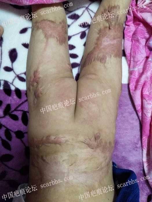小孩烫伤疤痕二年了,增生的地方又硬又痒,62-疤痕体质图片_疤痕疙瘩图片-中国疤痕论坛