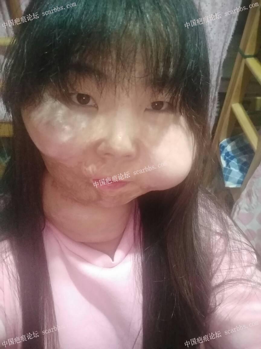 面部烧伤疤痕扩张术修复,给大家发一个反馈77-疤痕体质图片_疤痕疙瘩图片-中国疤痕论坛