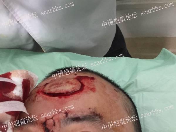 创面术后疤痕修复, 8cm左右97-疤痕体质图片_疤痕疙瘩图片-中国疤痕论坛