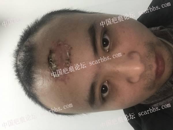 创面术后疤痕修复, 8cm左右51-疤痕体质图片_疤痕疙瘩图片-中国疤痕论坛