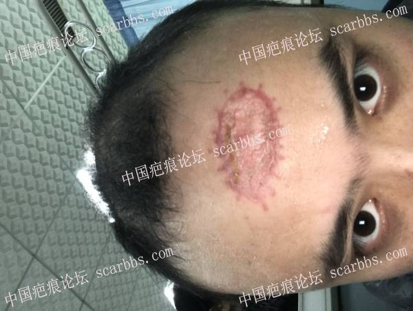 创面术后疤痕修复, 8cm左右71-疤痕体质图片_疤痕疙瘩图片-中国疤痕论坛