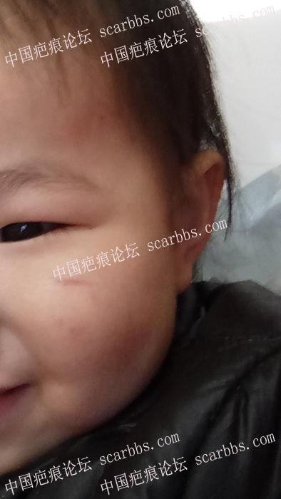 孩子脸部凹陷疤痕,求助杨医生55-疤痕体质图片_疤痕疙瘩图片-中国疤痕论坛