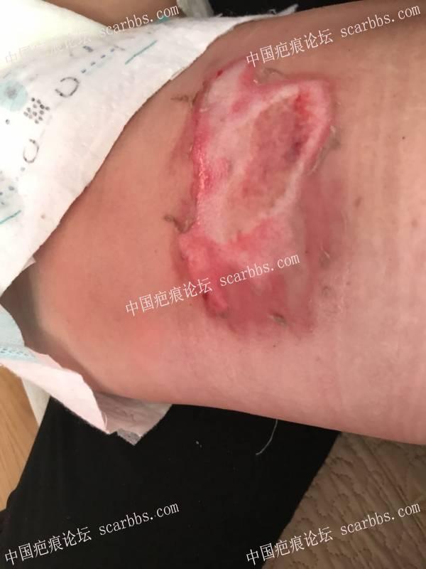 李高令2018年接治第二个受伤孩子(福建泉州)30-疤痕体质图片_疤痕疙瘩图片-中国疤痕论坛