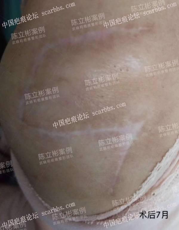 #疤痕疙瘩# #瘢痕疙瘩# #肩部疤痕# 术后7个月复诊记录40-疤痕体质图片_疤痕疙瘩图片-中国疤痕论坛