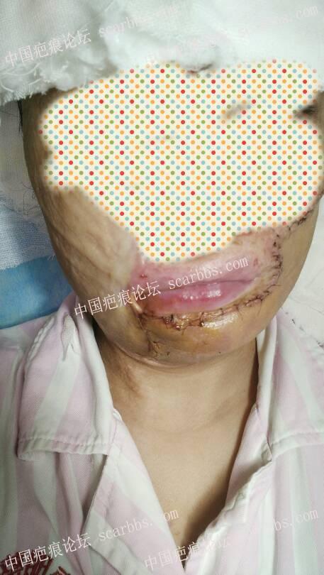 面部疤痕扩张器治疗,五个多月抗疤的心路历程 面部疤痕,扩张器治疗,