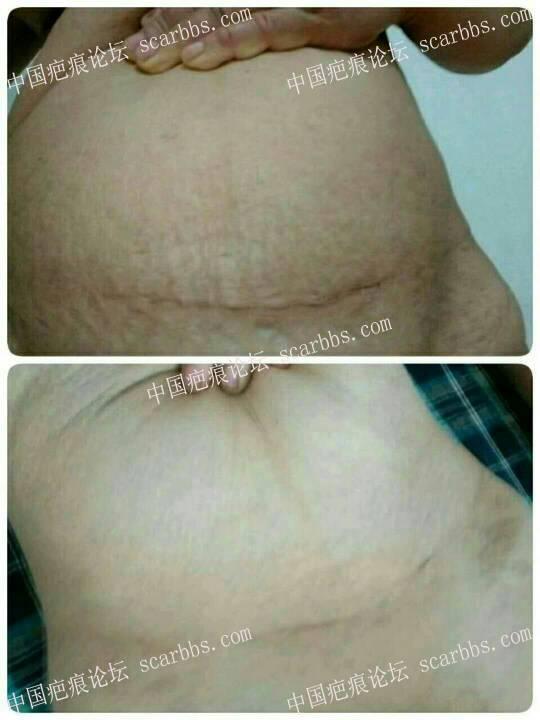 剖腹产疤痕治疗后,有这样的效果我真的很开心。4-疤痕体质图片_疤痕疙瘩图片-中国疤痕论坛