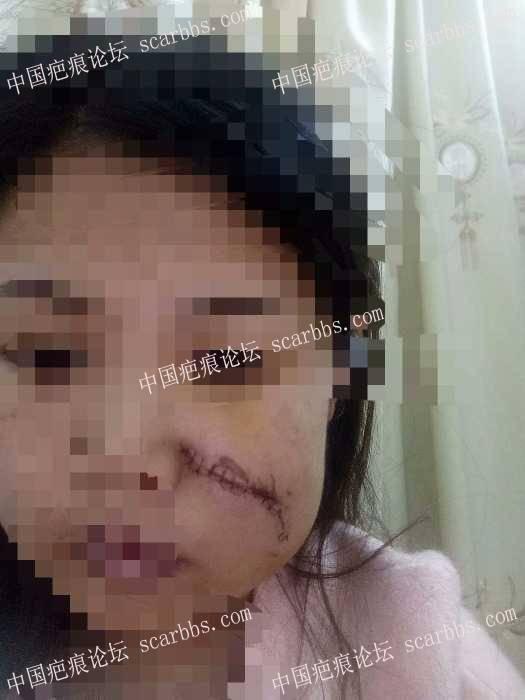 分享我的脸部手术疤痕康复过程(现在还在康复中)90-疤痕体质图片_疤痕疙瘩图片-中国疤痕论坛