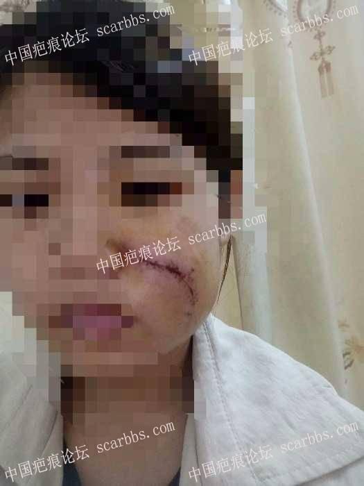 分享我的脸部手术疤痕康复过程(现在还在康复中)71-疤痕体质图片_疤痕疙瘩图片-中国疤痕论坛