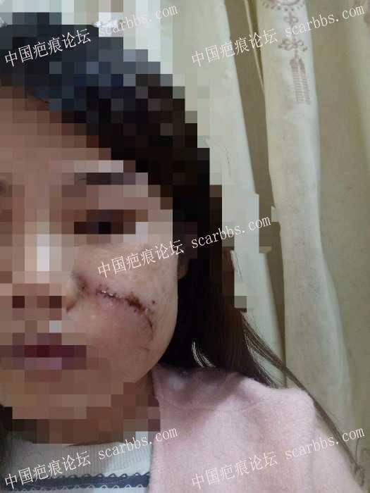 分享我的脸部手术疤痕康复过程(现在还在康复中)85-疤痕体质图片_疤痕疙瘩图片-中国疤痕论坛