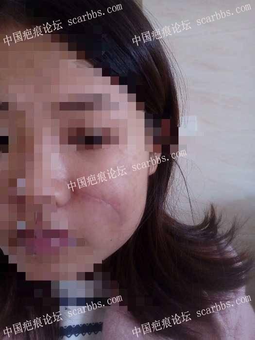 分享我的脸部手术疤痕康复过程(现在还在康复中)