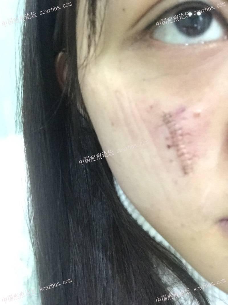 1.23日脸部凹陷切除。一厘米凹陷疤痕来找杨