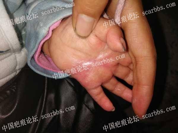 孩子手掌烧伤,抗疤路上不被家人支持,感觉很无助